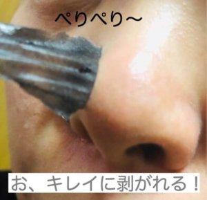 ダイソー 鼻の毛穴ジェルパック 口コミ